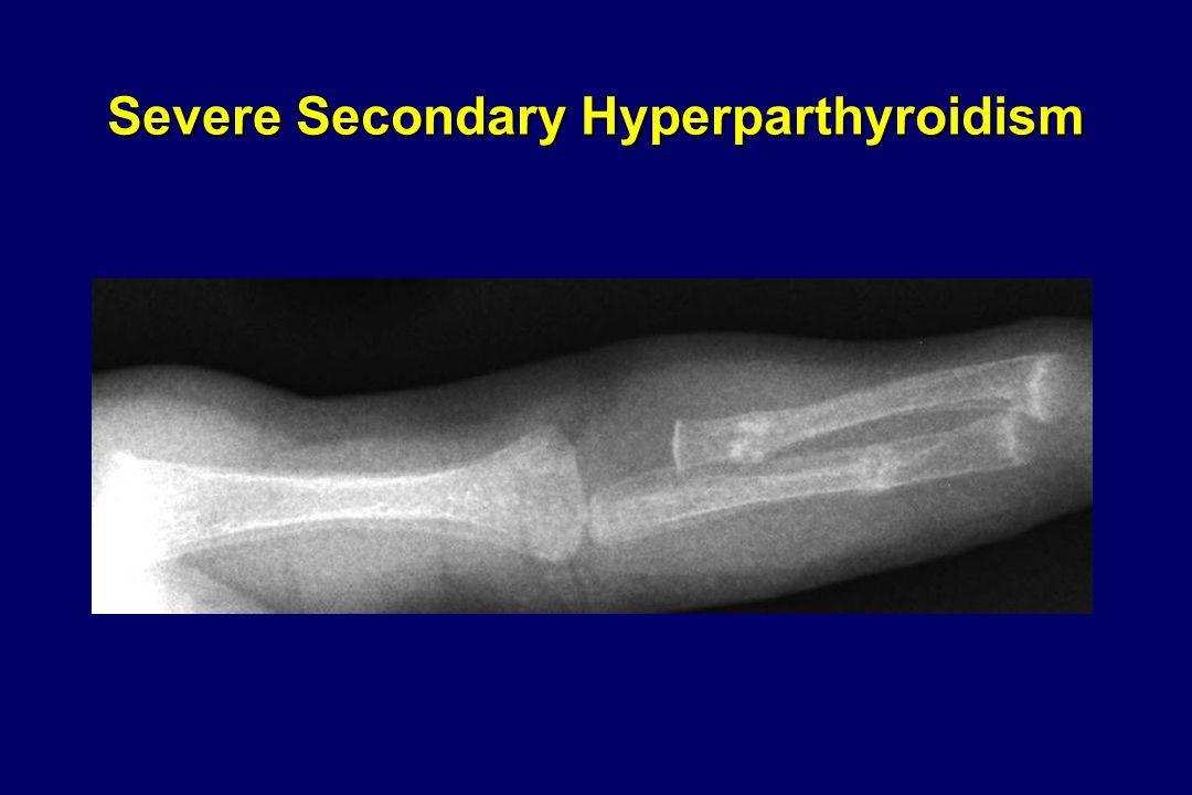 Severe Secondary Hyperparthyroidism