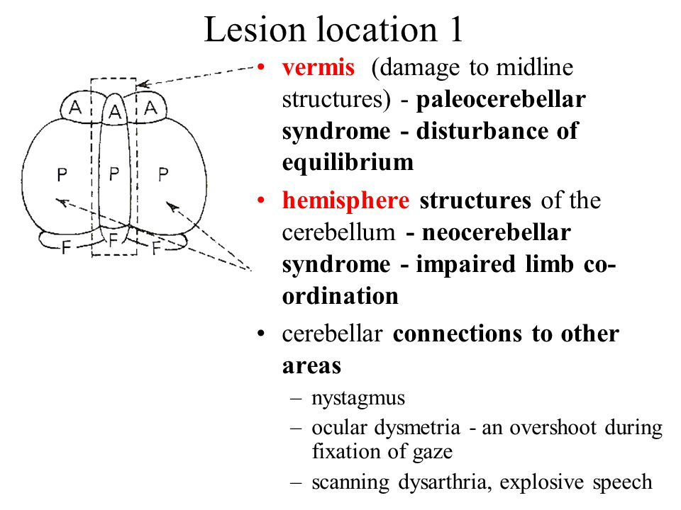 Lesion location 1 vermis (damage to midline structures) - paleocerebellar syndrome - disturbance of equilibrium hemisphere structures of the cerebellum - neocerebellar syndrome - impaired limb co- ordination cerebellar connections to other areas –nystagmus –ocular dysmetria - an overshoot during fixation of gaze –scanning dysarthria, explosive speech