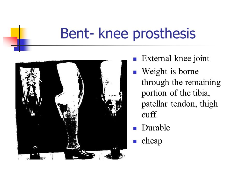 Bent- knee prosthesis External knee joint Weight is borne through the remaining portion of the tibia, patellar tendon, thigh cuff. Durable cheap