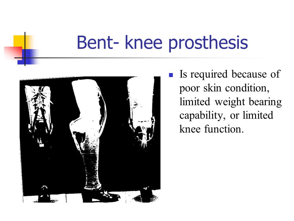 Bent- knee prosthesis Is required because of poor skin condition, limited weight bearing capability, or limited knee function.