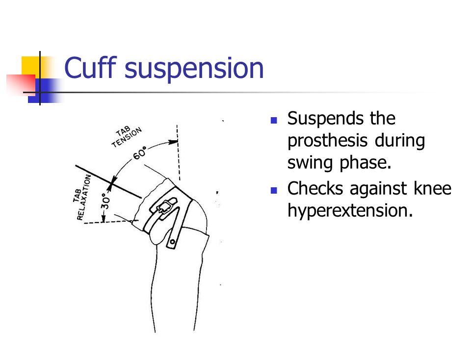 Cuff suspension Suspends the prosthesis during swing phase. Checks against knee hyperextension.