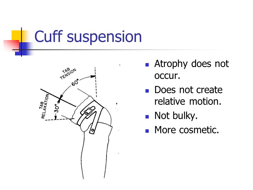 Cuff suspension Atrophy does not occur. Does not create relative motion. Not bulky. More cosmetic.