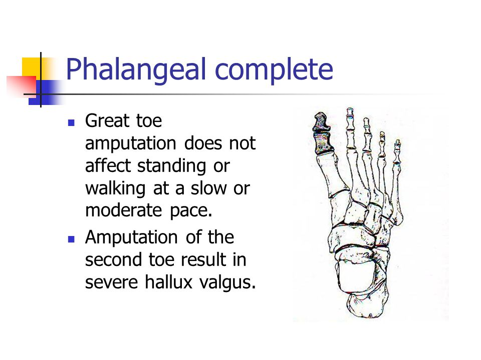 Great toe amputation does not affect standing or walking at a slow or moderate pace. Amputation of the second toe result in severe hallux valgus.