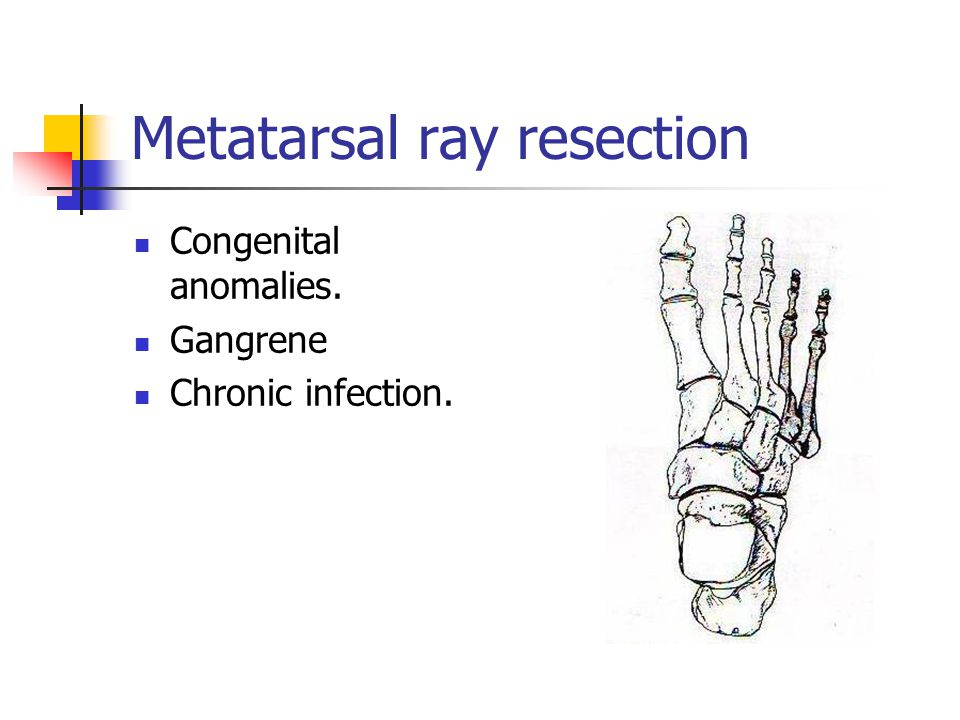 Congenital anomalies. Gangrene Chronic infection.