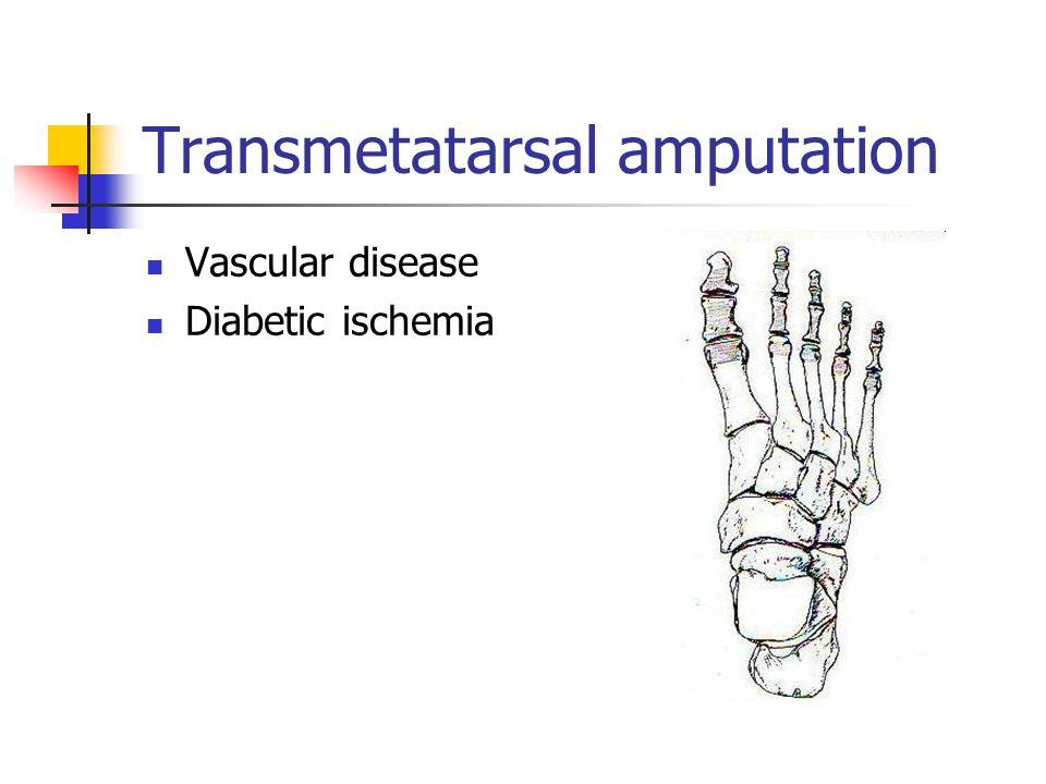 Transmetatarsal amputation Vascular disease Diabetic ischemia