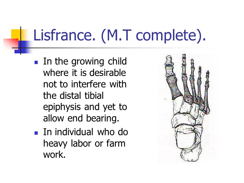 Lisfrance. (M.T complete). In the growing child where it is desirable not to interfere with the distal tibial epiphysis and yet to allow end bearing.