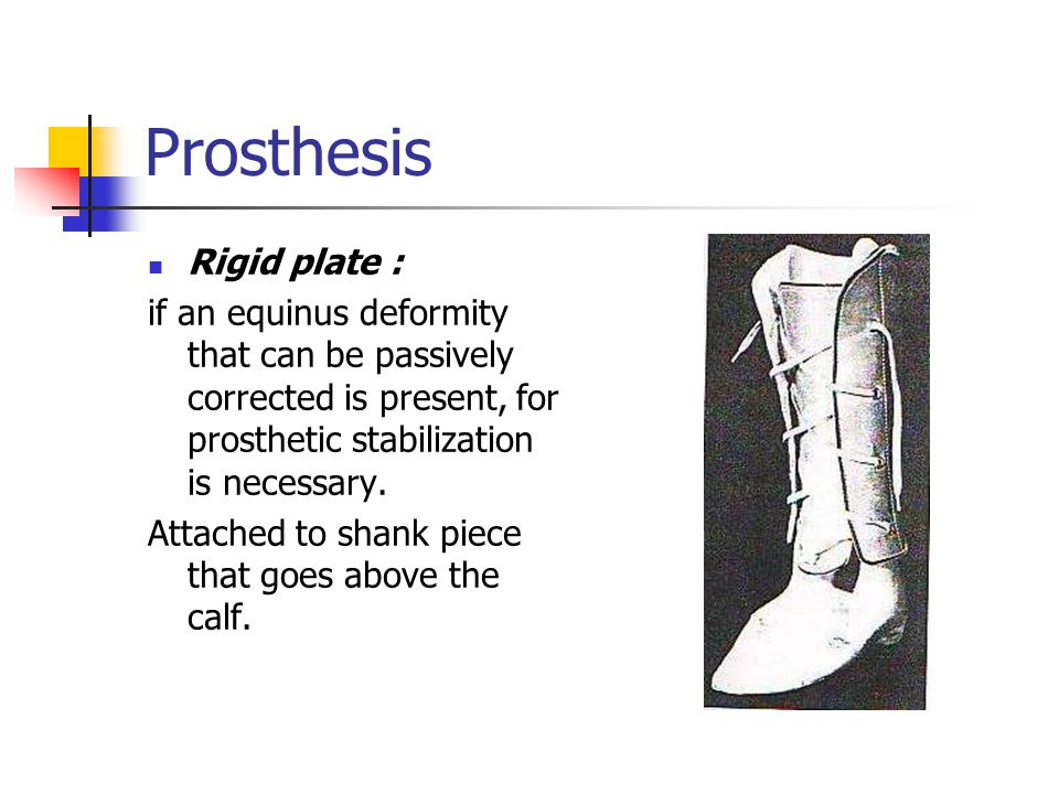 Prosthesis Rigid plate : if an equinus deformity that can be passively corrected is present, for prosthetic stabilization is necessary. Attached to sh