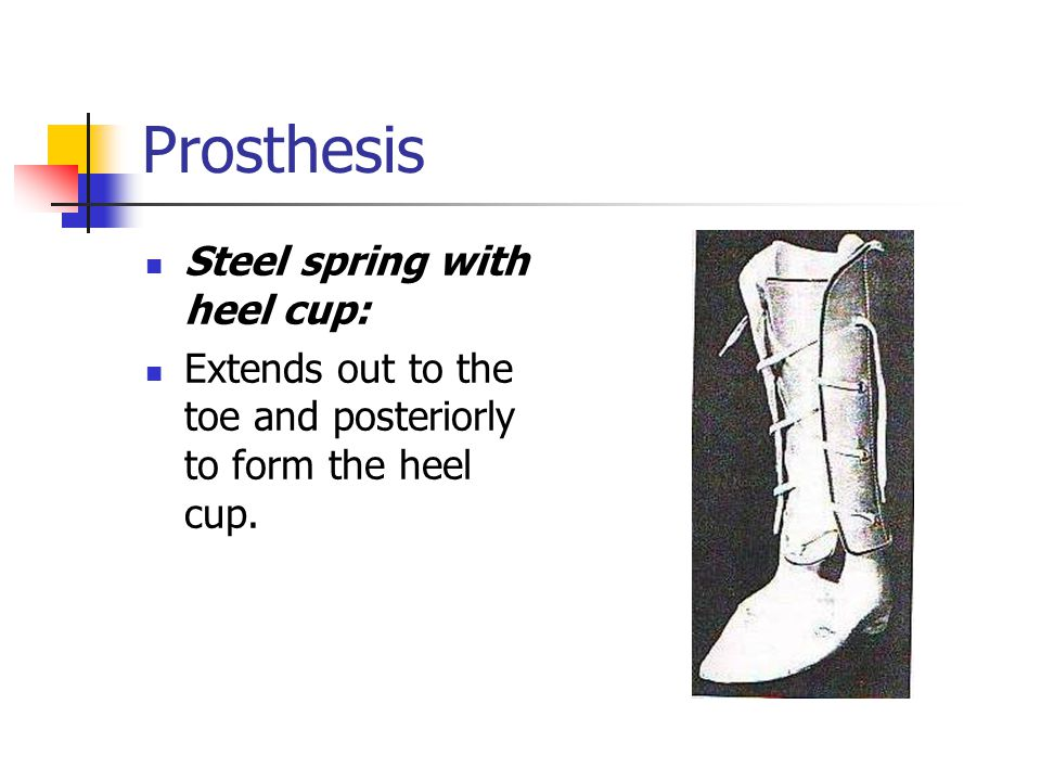 Prosthesis Steel spring with heel cup: Extends out to the toe and posteriorly to form the heel cup.