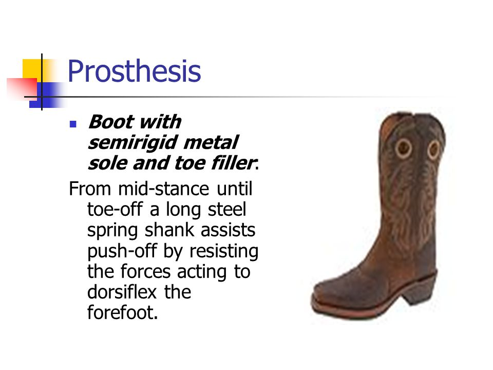 Prosthesis Boot with semirigid metal sole and toe filler: From mid-stance until toe-off a long steel spring shank assists push-off by resisting the fo