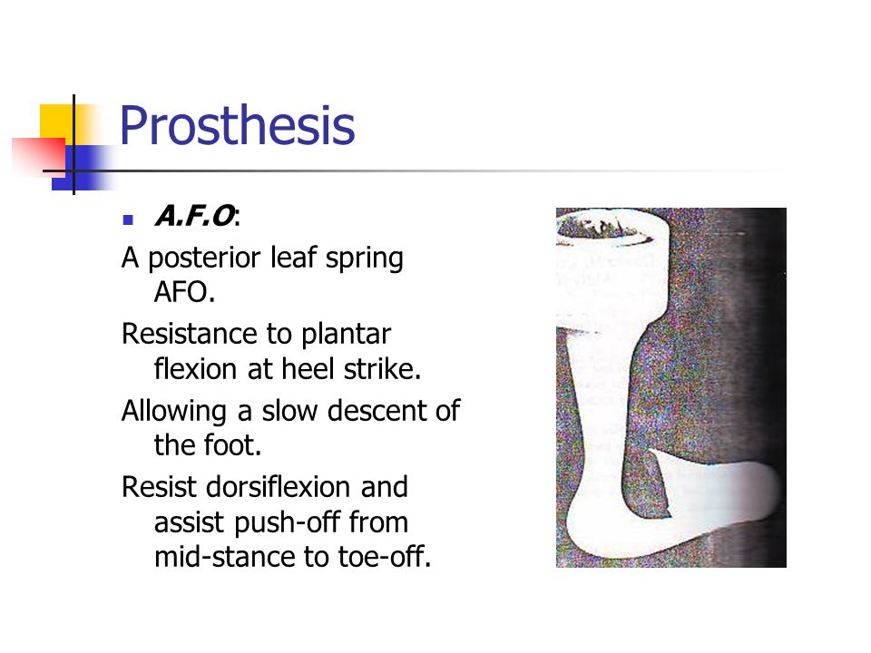 Prosthesis A.F.O: A posterior leaf spring AFO. Resistance to plantar flexion at heel strike. Allowing a slow descent of the foot. Resist dorsiflexion