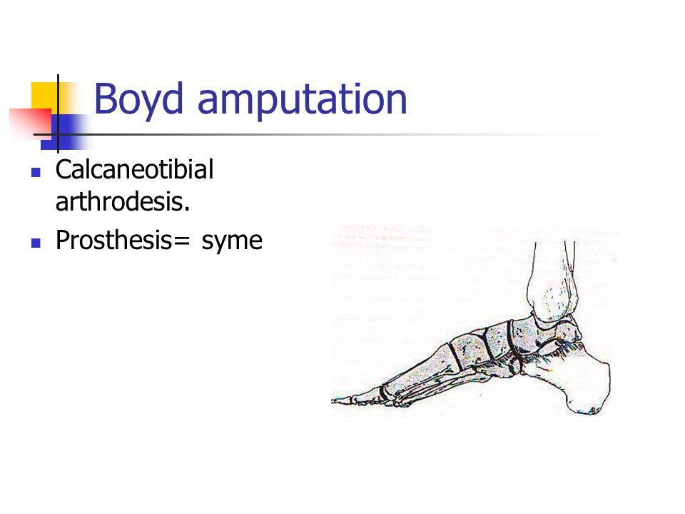 Boyd amputation Calcaneotibial arthrodesis. Prosthesis= syme