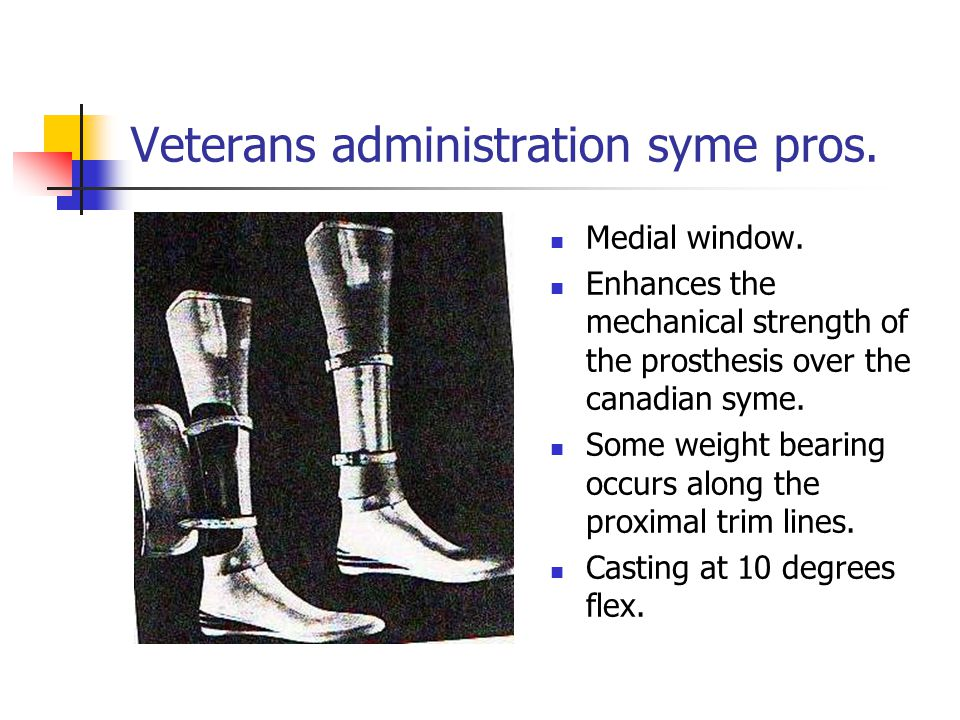 Medial window. Enhances the mechanical strength of the prosthesis over the canadian syme. Some weight bearing occurs along the proximal trim lines. Ca