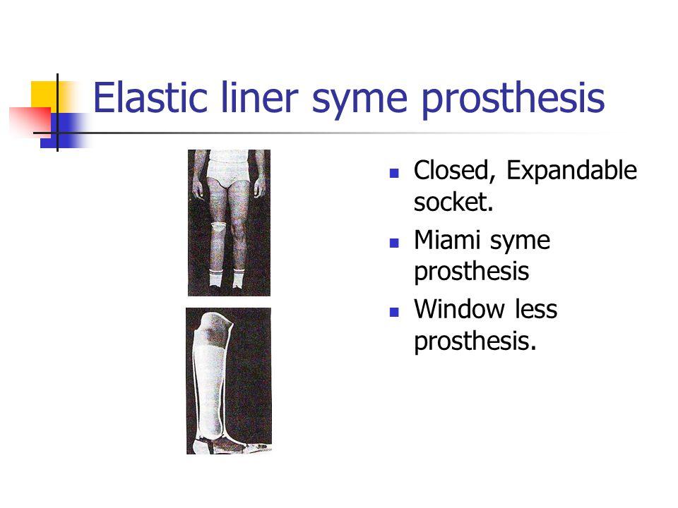 Closed, Expandable socket. Miami syme prosthesis Window less prosthesis.