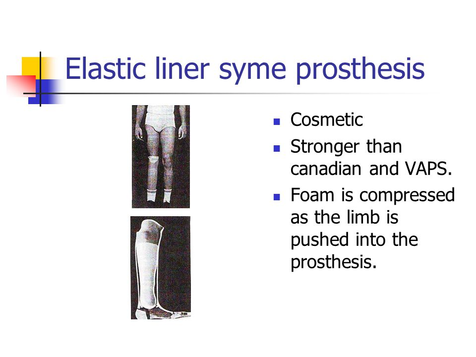 Elastic liner syme prosthesis Cosmetic Stronger than canadian and VAPS. Foam is compressed as the limb is pushed into the prosthesis.