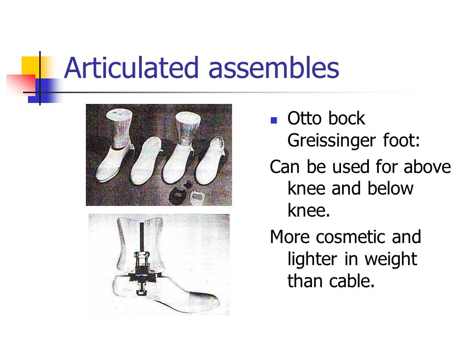 Articulated assembles Otto bock Greissinger foot: Can be used for above knee and below knee. More cosmetic and lighter in weight than cable.