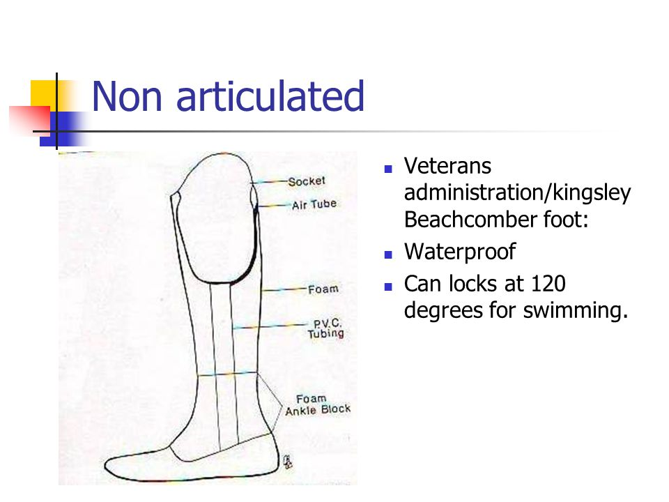 Non articulated Veterans administration/kingsley Beachcomber foot: Waterproof Can locks at 120 degrees for swimming.