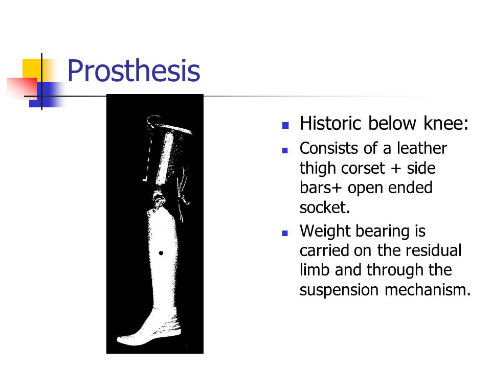 Prosthesis Historic below knee: Consists of a leather thigh corset + side bars+ open ended socket. Weight bearing is carried on the residual limb and