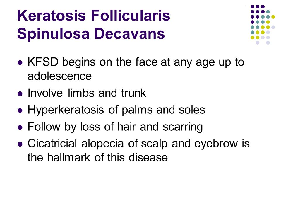 Keratosis Follicularis Spinulosa Decavans KFSD begins on the face at any age up to adolescence Involve limbs and trunk Hyperkeratosis of palms and soles Follow by loss of hair and scarring Cicatricial alopecia of scalp and eyebrow is the hallmark of this disease