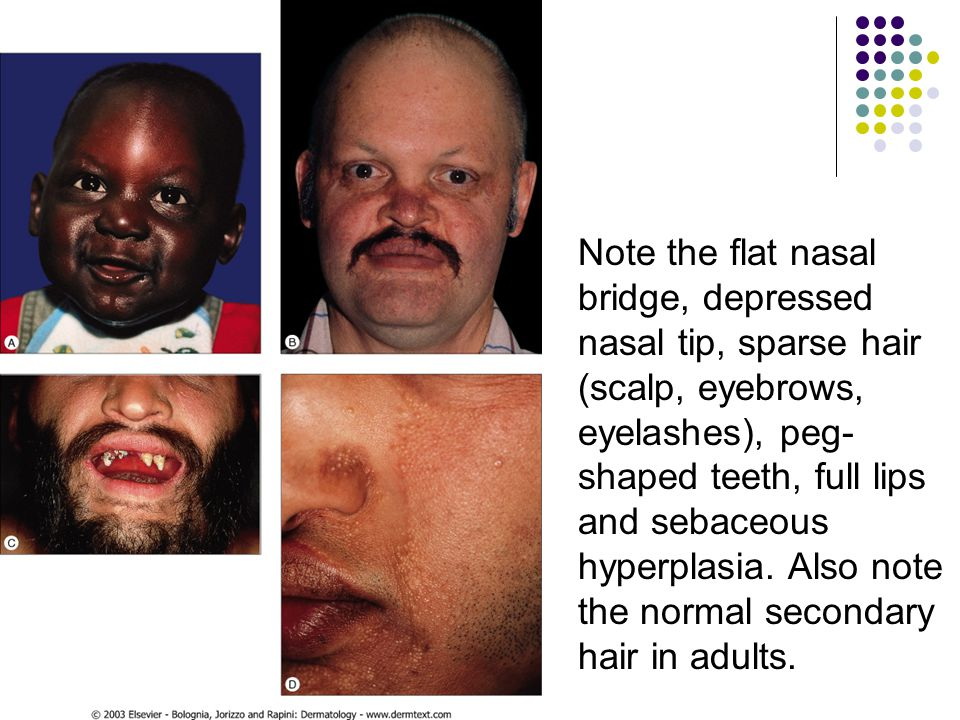 Note the flat nasal bridge, depressed nasal tip, sparse hair (scalp, eyebrows, eyelashes), peg- shaped teeth, full lips and sebaceous hyperplasia.