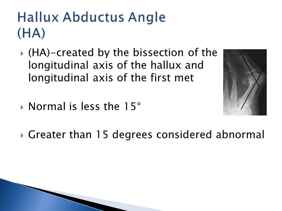  (HA)-created by the bissection of the longitudinal axis of the hallux and longitudinal axis of the first met  Normal is less the 15°  Greater than 15 degrees considered abnormal