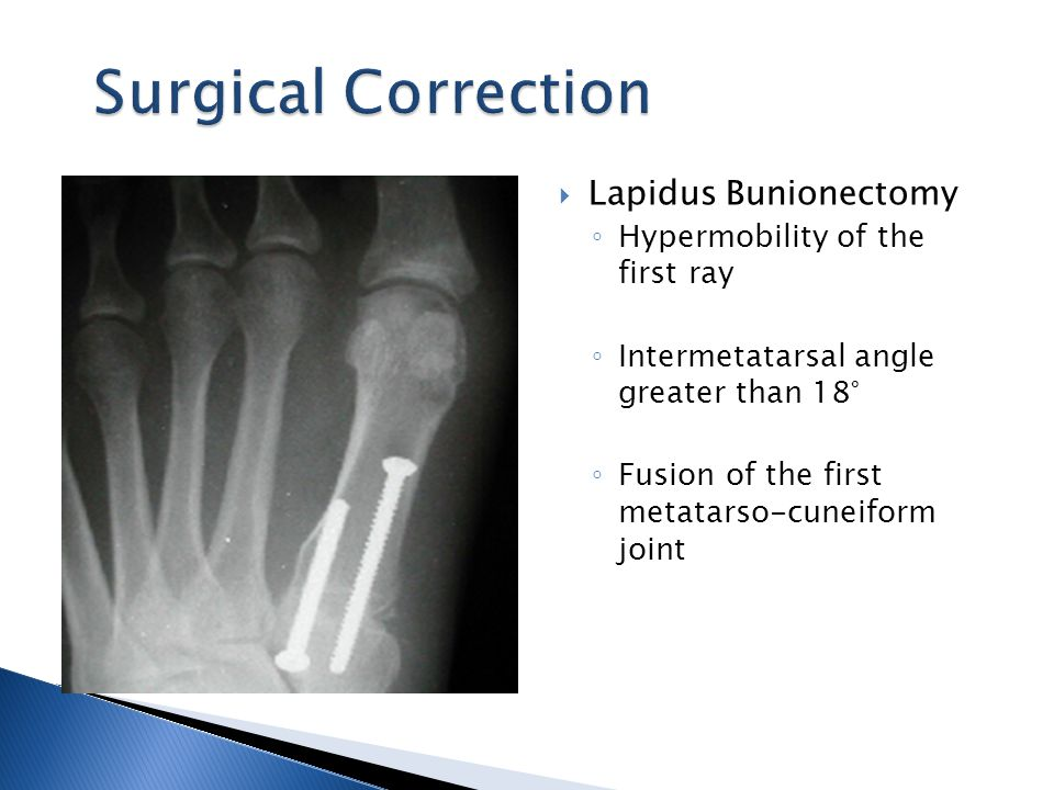  Lapidus Bunionectomy ◦ Hypermobility of the first ray ◦ Intermetatarsal angle greater than 18° ◦ Fusion of the first metatarso-cuneiform joint