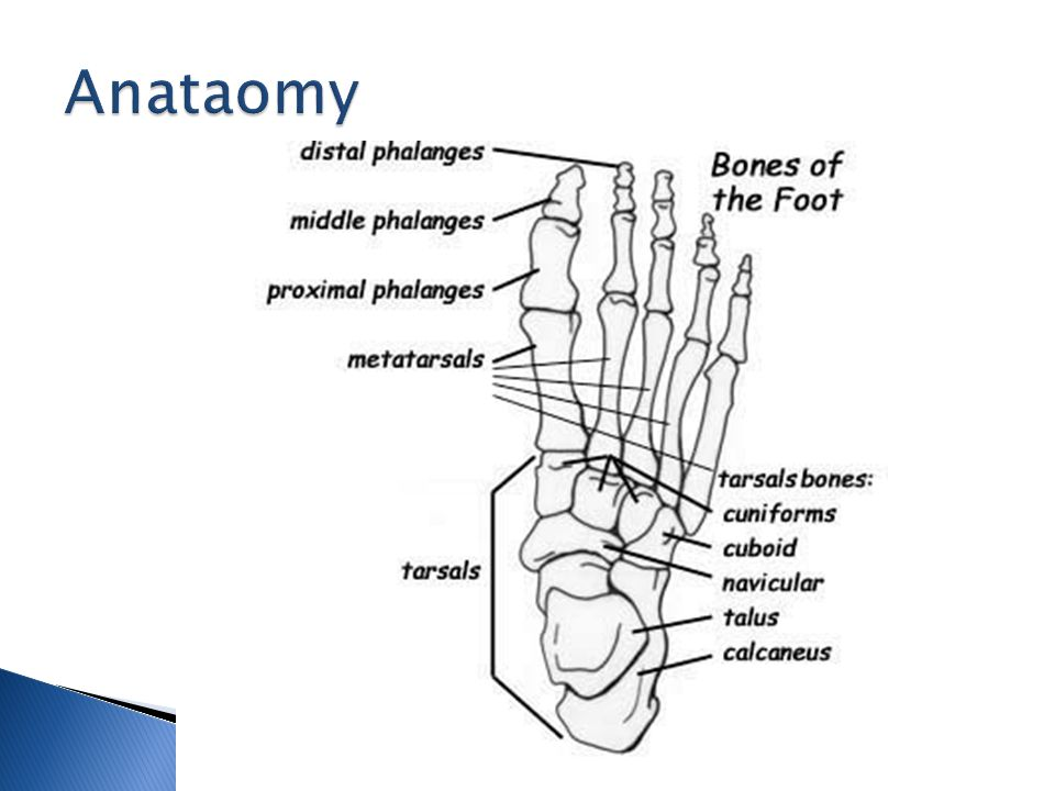  Austin bunionectomy ◦ Head osteotomy ◦ Creating a V shaped osteotomy in the head of the metatarsal