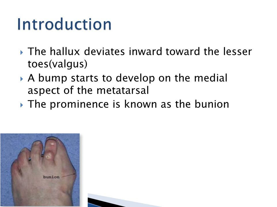  bunion a structual deformity of the bones and joint of the first metatarsal  May often present with a bursa (sac of fluid) between tendons and bone or even skin and bone and often painful with palpation