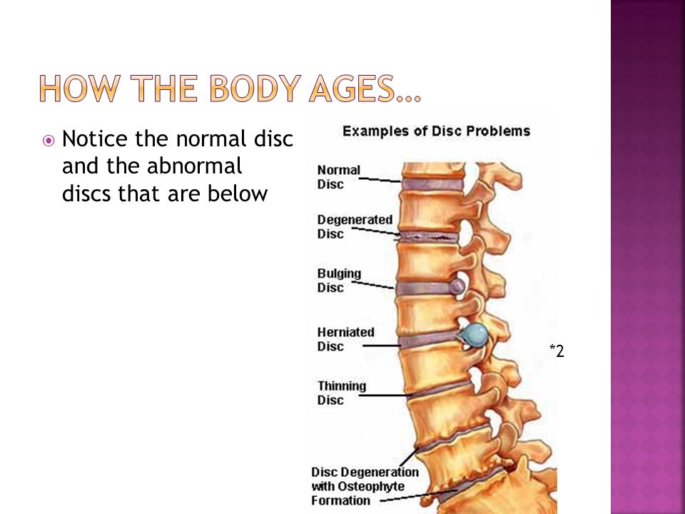  Notice the normal disc and the abnormal discs that are below *2