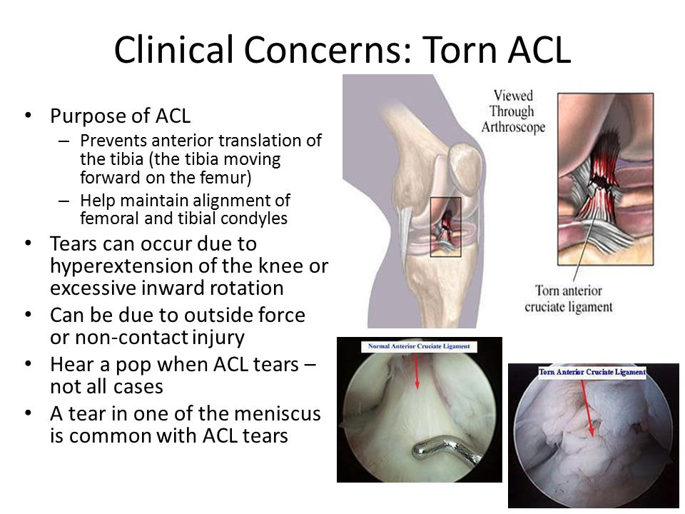 Clinical Concerns: Torn ACL Purpose of ACL – Prevents anterior translation of the tibia (the tibia moving forward on the femur) – Help maintain alignment of femoral and tibial condyles Tears can occur due to hyperextension of the knee or excessive inward rotation Can be due to outside force or non-contact injury Hear a pop when ACL tears – not all cases A tear in one of the meniscus is common with ACL tears