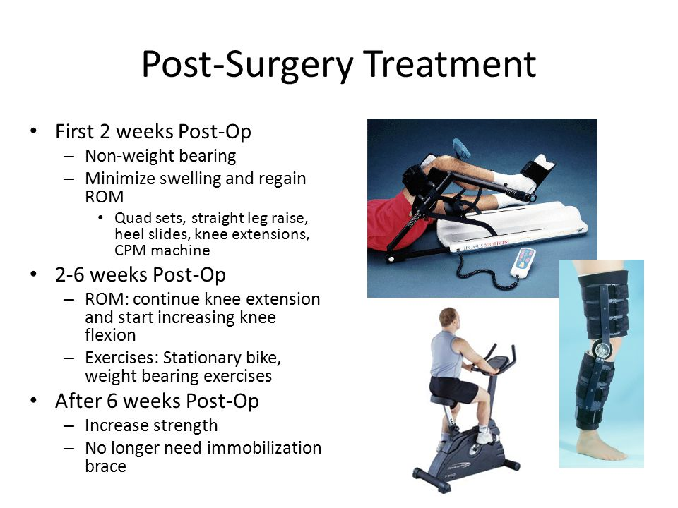 Post-Surgery Treatment First 2 weeks Post-Op – Non-weight bearing – Minimize swelling and regain ROM Quad sets, straight leg raise, heel slides, knee extensions, CPM machine 2-6 weeks Post-Op – ROM: continue knee extension and start increasing knee flexion – Exercises: Stationary bike, weight bearing exercises After 6 weeks Post-Op – Increase strength – No longer need immobilization brace