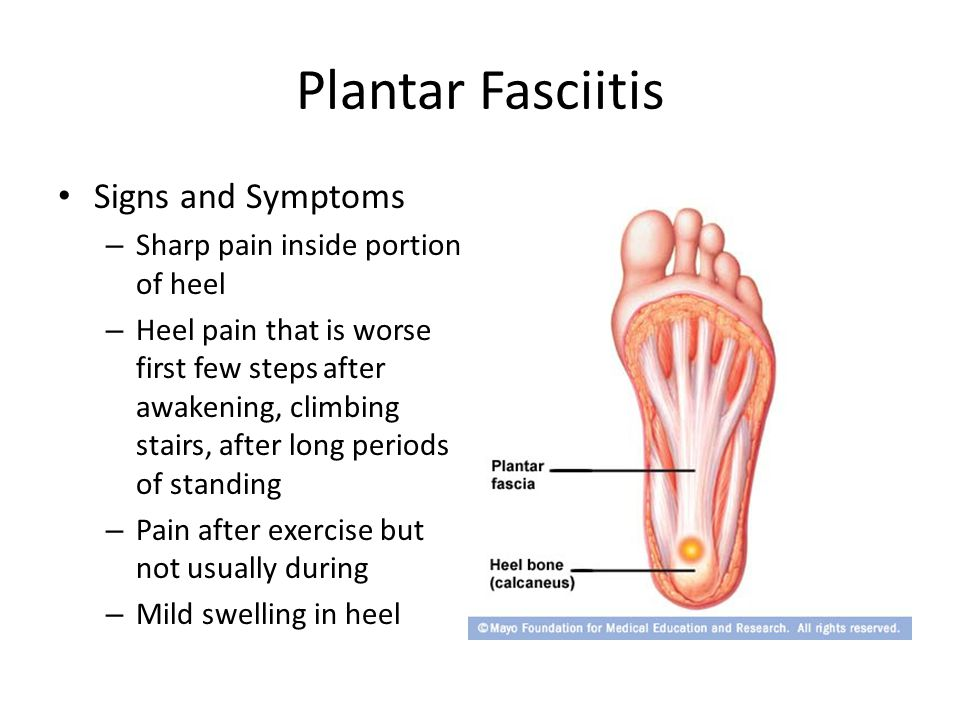 Plantar Fasciitis Signs and Symptoms – Sharp pain inside portion of heel – Heel pain that is worse first few steps after awakening, climbing stairs, after long periods of standing – Pain after exercise but not usually during – Mild swelling in heel