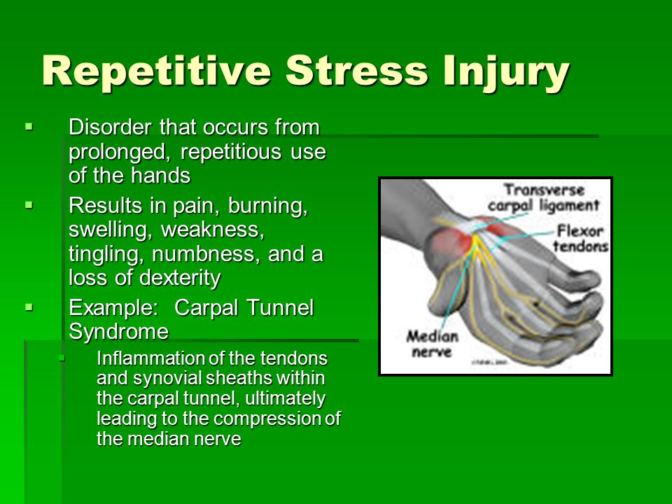 Repetitive Stress Injury  Disorder that occurs from prolonged, repetitious use of the hands  Results in pain, burning, swelling, weakness, tingling, numbness, and a loss of dexterity  Example: Carpal Tunnel Syndrome  Inflammation of the tendons and synovial sheaths within the carpal tunnel, ultimately leading to the compression of the median nerve