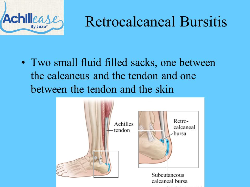 Retrocalcaneal Bursitis Two small fluid filled sacks, one between the calcaneus and the tendon and one between the tendon and the skin