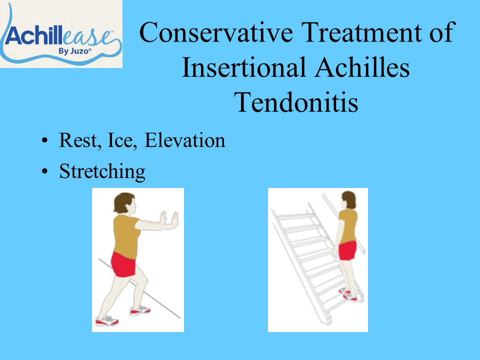 Conservative Treatment of Insertional Achilles Tendonitis Rest, Ice, Elevation Stretching