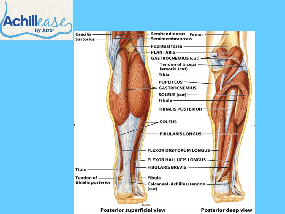 Heel Spur/Plantar Fasciitis History (cont.) –Change in physical activity Seated  Standing 4 miles  10 miles Physical Examination –Thumb pressure to the medial calcaneal tubercle