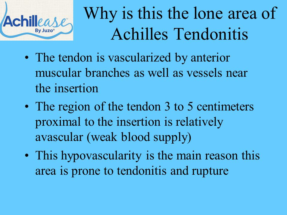 Who is Likely to Treat Achilles Tendonitis.
