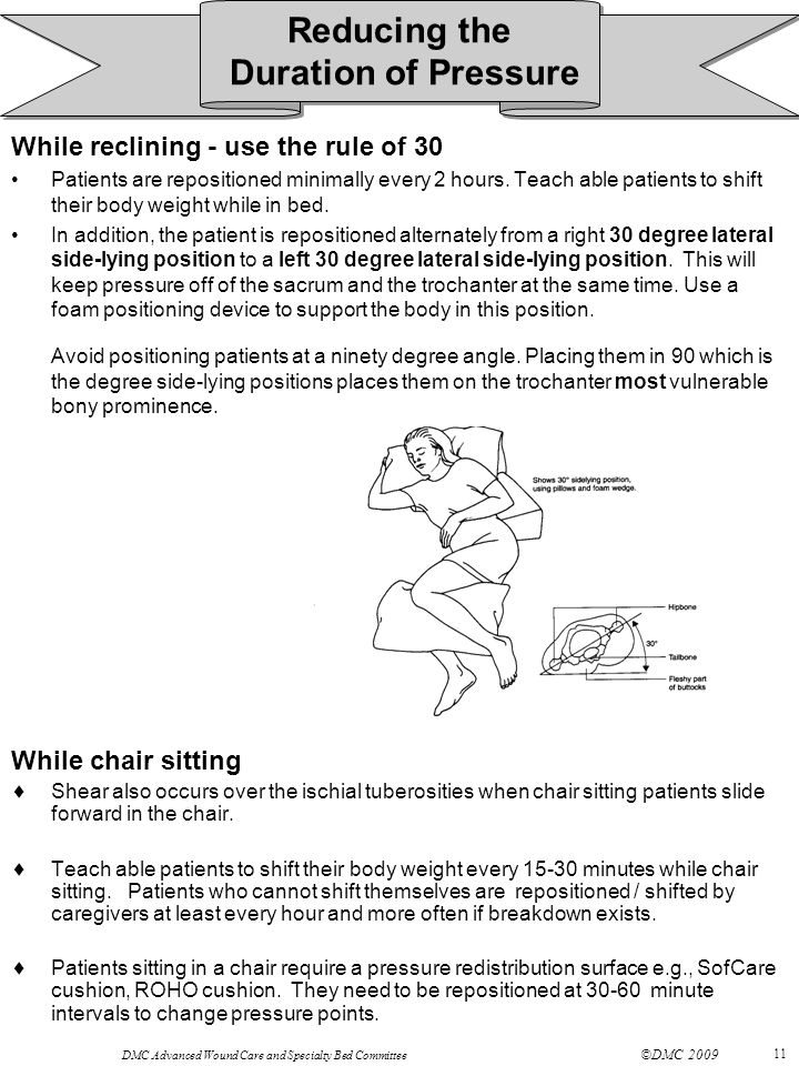 DMC Advanced Wound Care and Specialty Bed Committee ©DMC 2009 11 While reclining - use the rule of 30 Patients are repositioned minimally every 2 hours.