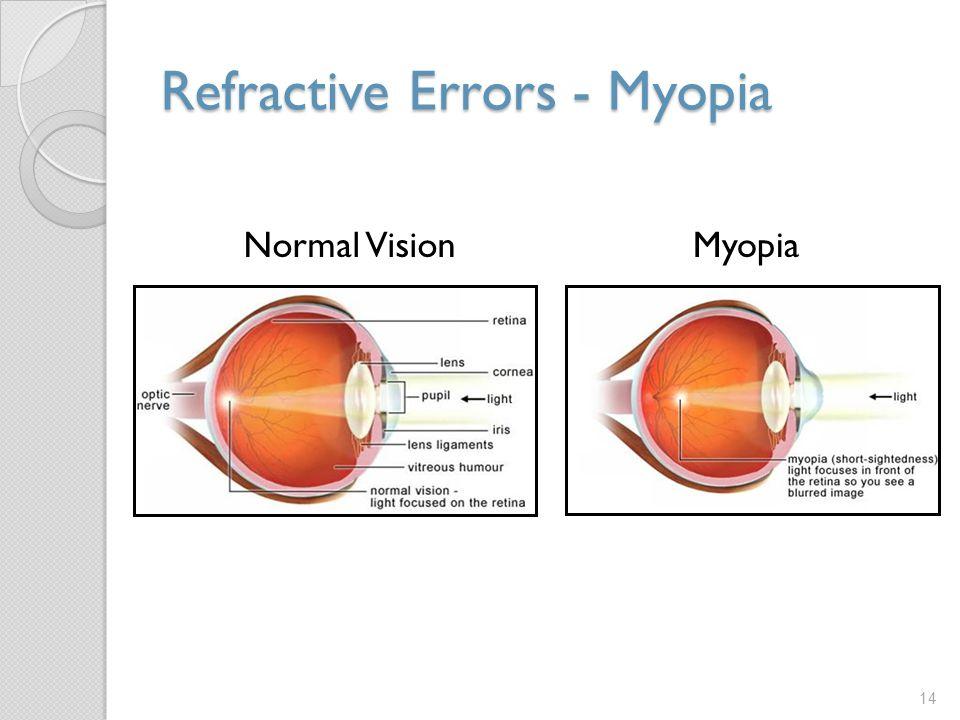 Refractive Errors - Myopia 14 Normal VisionMyopia