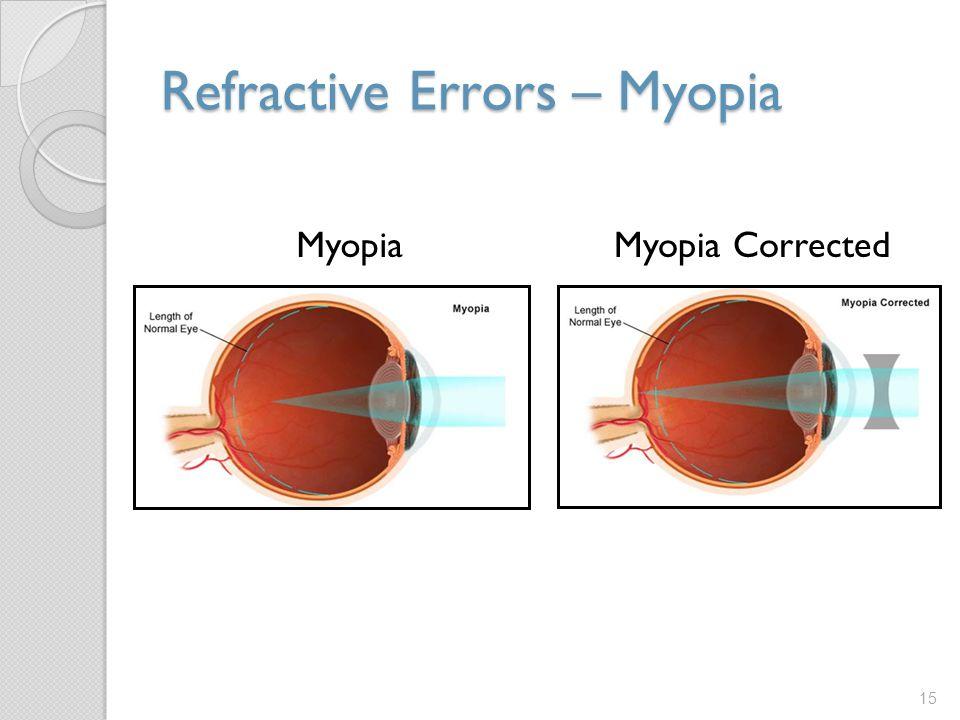 Refractive Errors – Myopia 15 MyopiaMyopia Corrected