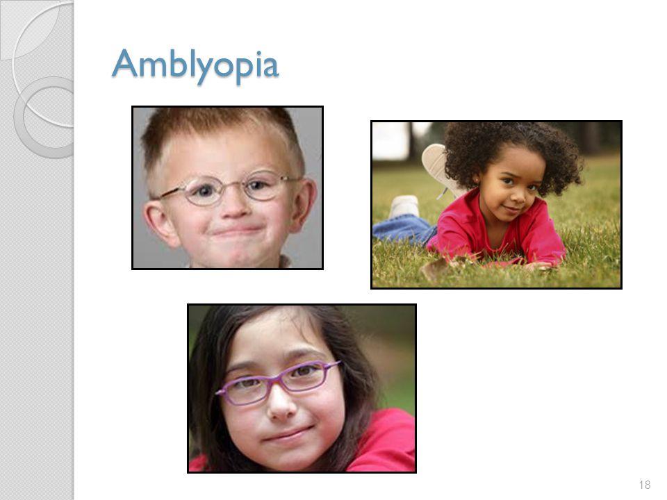 Amblyopia 18