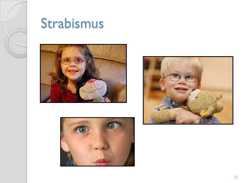 Strabismus 22