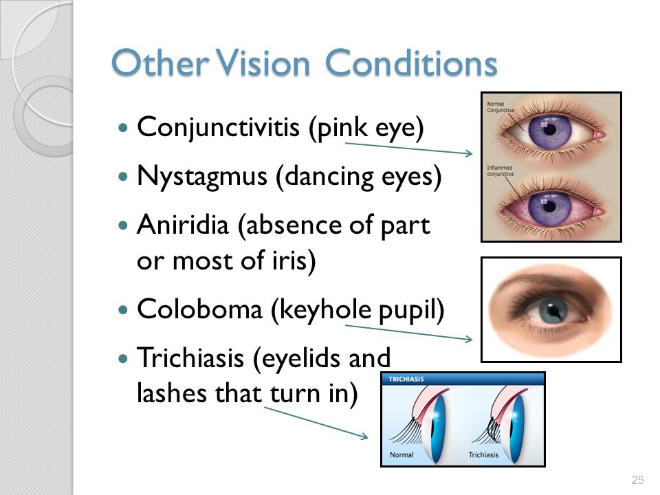 Other Vision Conditions Conjunctivitis (pink eye) Nystagmus (dancing eyes) Aniridia (absence of part or most of iris) Coloboma (keyhole pupil) Trichiasis (eyelids and lashes that turn in) 25