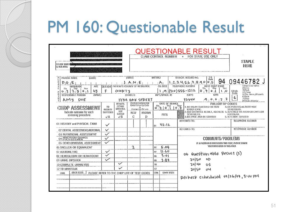 PM 160: Questionable Result 51