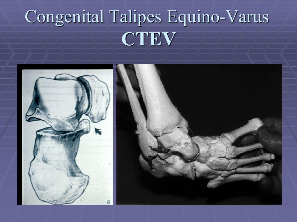 Congenital Talipes Equino-Varus CTEV
