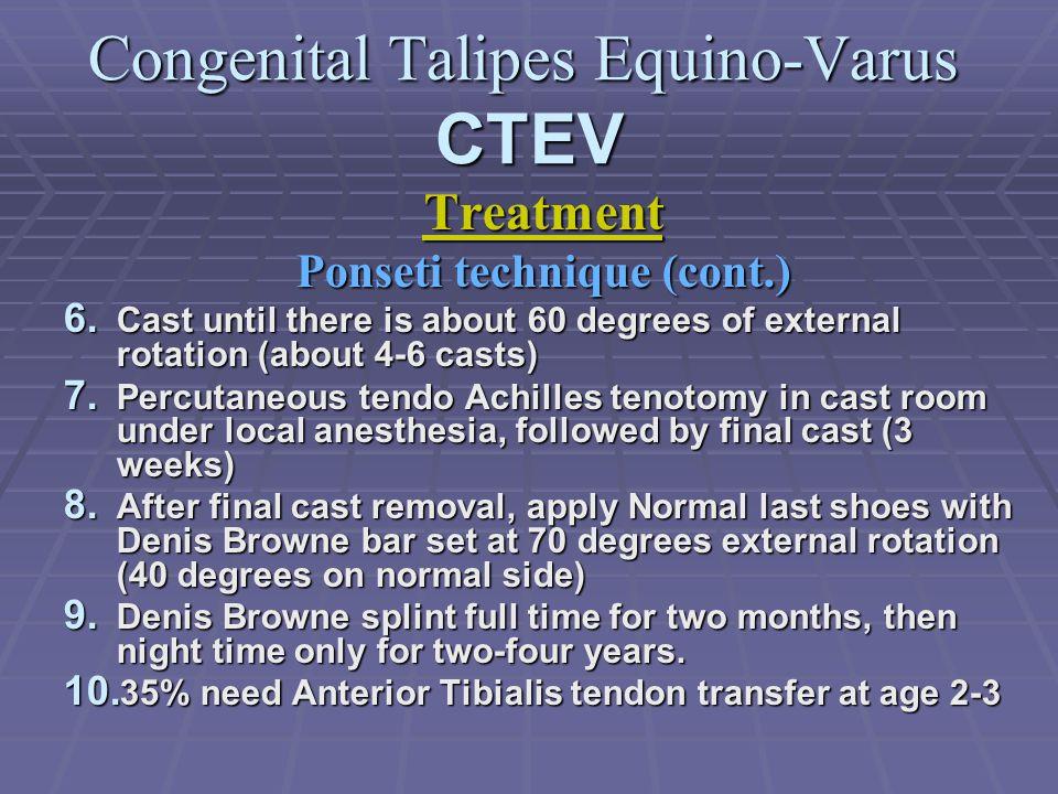 Congenital Talipes Equino-Varus CTEV Treatment Ponseti technique (cont.) 6.