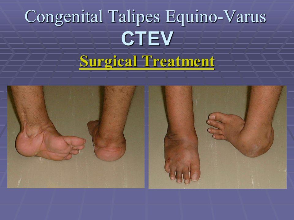 Congenital Talipes Equino-Varus CTEV Surgical Treatment