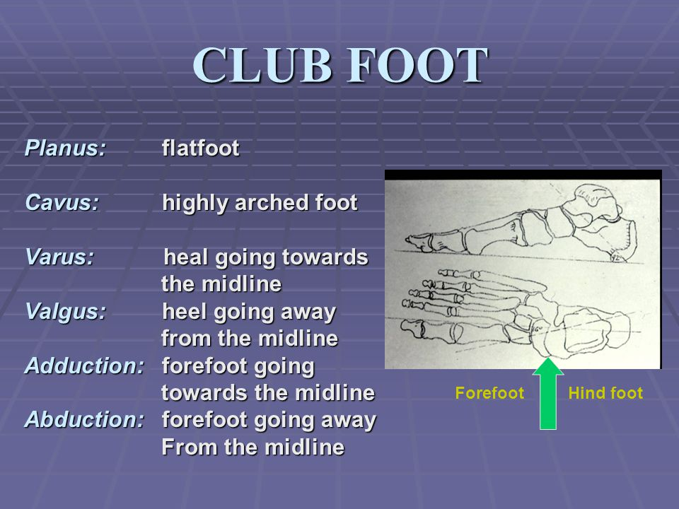 CLUB FOOT Planus: flatfoot Cavus: highly arched foot Varus: heal going towards the midline the midline Valgus: heel going away from the midline from the midline Adduction: forefoot going towards the midline towards the midline Abduction: forefoot going away From the midline From the midline ForefootHind foot