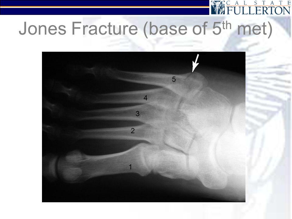 Jones Fracture (base of 5 th met) 1 2 3 4 5