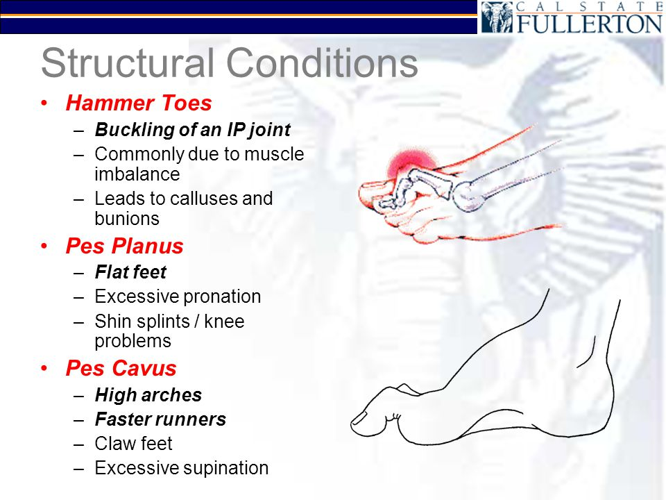 Structural Conditions Hammer Toes –Buckling of an IP joint –Commonly due to muscle imbalance –Leads to calluses and bunions Pes Planus –Flat feet –Exc