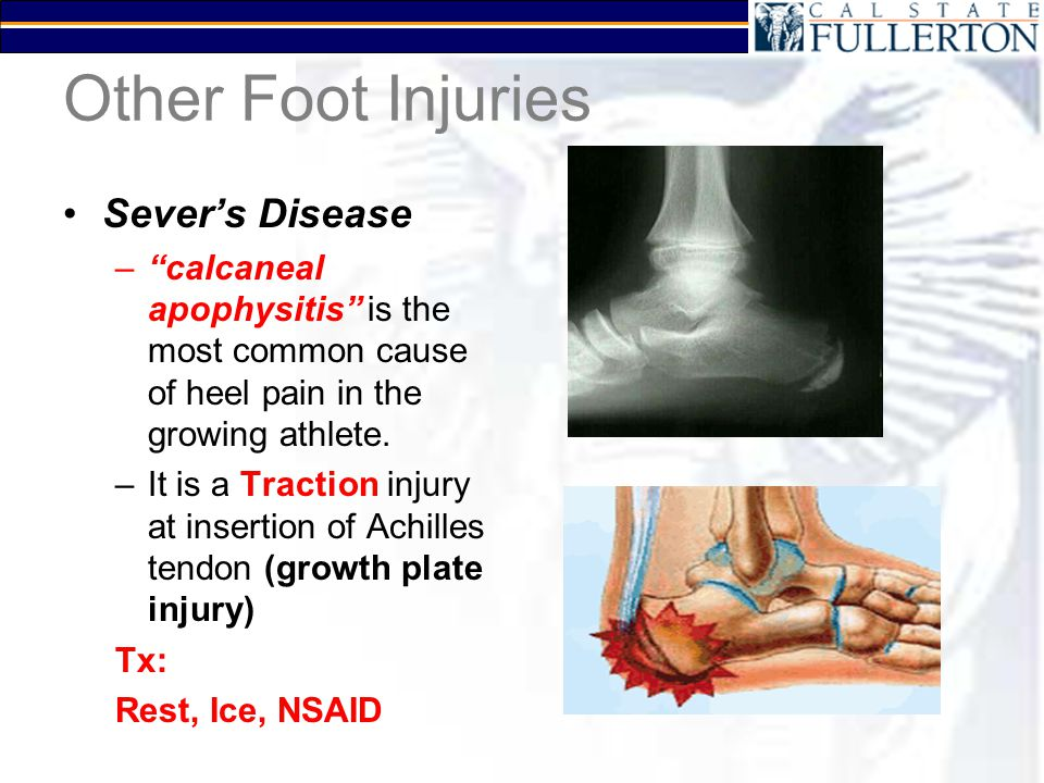 "Other Foot Injuries Sever's Disease –""calcaneal apophysitis"" is the most common cause of heel pain in the growing athlete. –It is a Traction injury at"